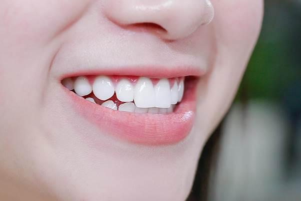 Mơ thấy răng